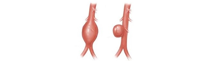 aortane