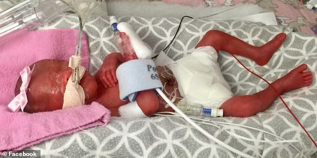 She was born in September 2015 at Primary Children's Hospital in Salt Lake City weighing just one pound and six ounces. Pictured: Zariah when she was born